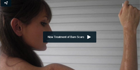 NEW TREATMENT FOR BURN SCARS
