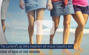 Lumenis Leg Veins Treatment