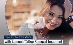 Lumenis Tattoo Removal Treatment